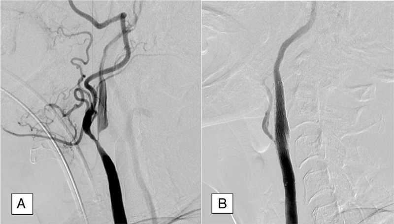 Figure 1 Subtotal carotid occlusion before (a) and after stenting (b).