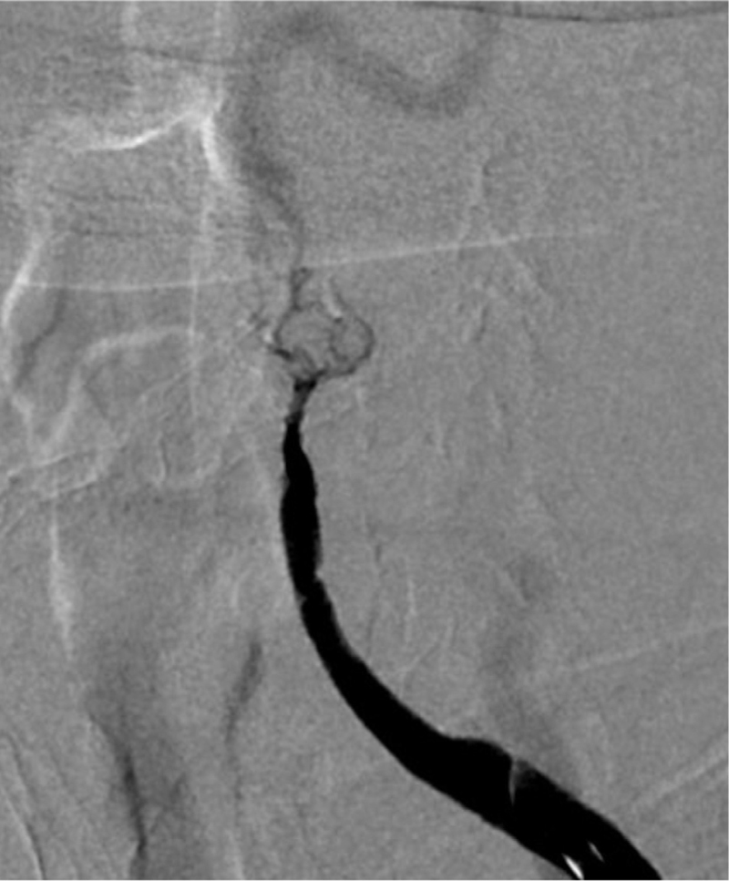 Figure 2 Subtotal occlusion with well-developed vasavasorum crossing the lesion.