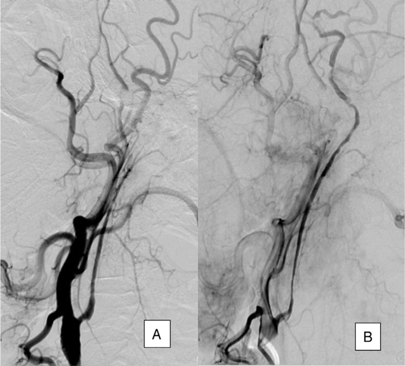 Figure 5 Fifty percent stenosis in hypoplastic carotid artery in early (a) and late arterial phase (b).